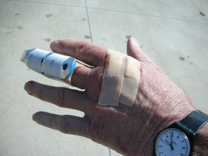 Dennis Kruse's dog bite hand after hospital visit.