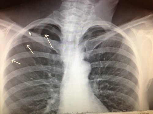 Catherine's x-ray.