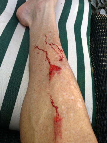 My shin after slipping on a rock, extracting Stanley from the river.