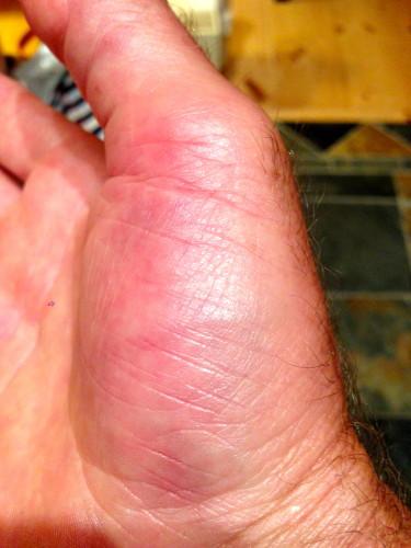 Swollen thumb.
