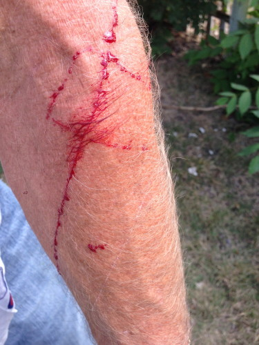 I ripped my arm up mowing on a thorn bush before we left.