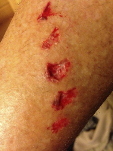 """I fell on a slick root riding down to swim in the lake.  Obviously my chainring caught my calf.  I have this exact """"tatoo"""" under my hair by getting ran over in a Gant Challenge race back in the 80's."""