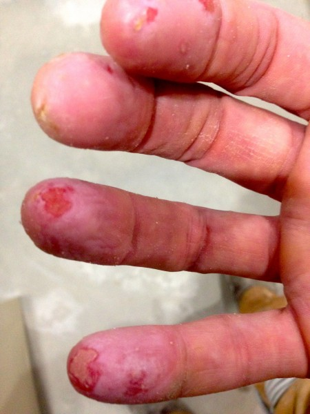 The picture was from yesterday.  Today my fingers look much worse.