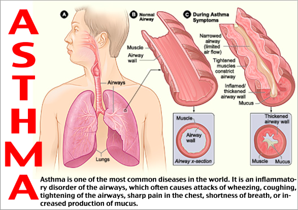 world-asthma-day-2