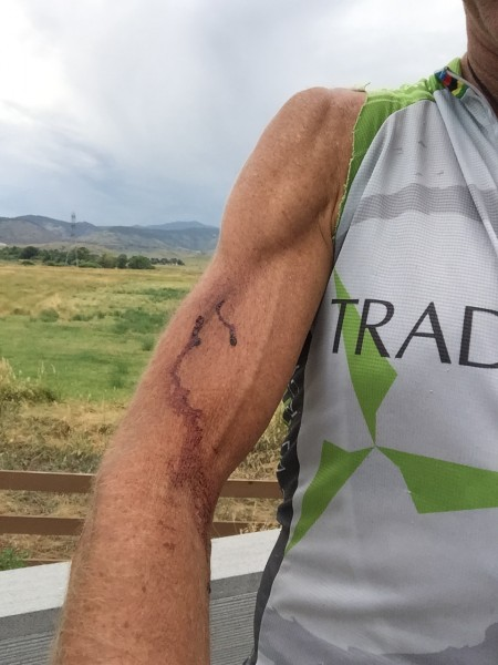 I think you're always bleeding just a little when training and racing MTB.