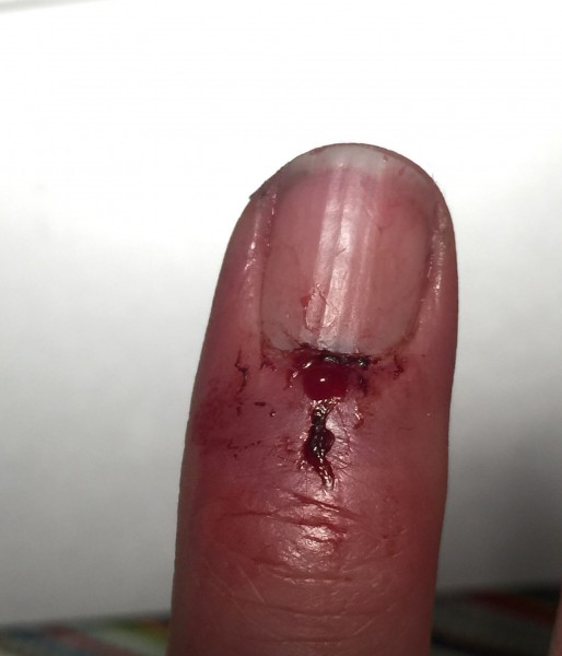 Bad finger.