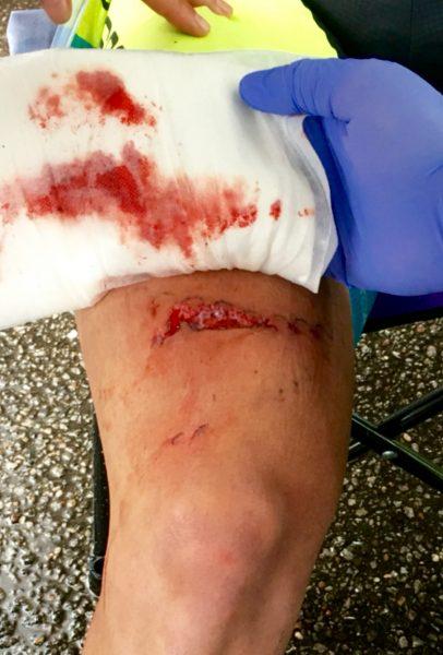 Pretty bad chainring cut.